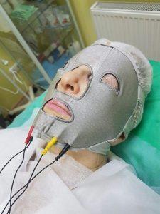 безинъекционная гиалуронопластика